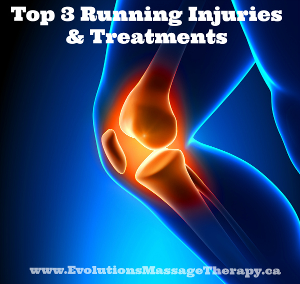 Top 3 Running Injuries and Treatment